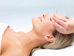 Facial Acupuncture Tunbridge Wells Crowborough